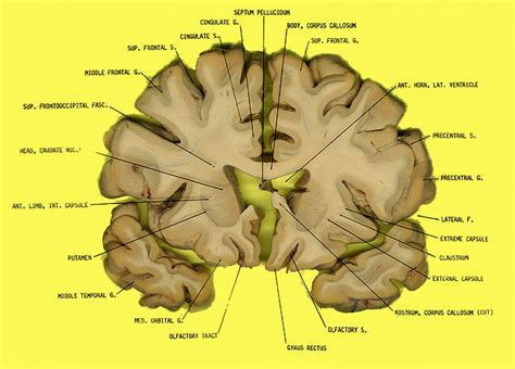 brain sections labeled coronal plane brain images