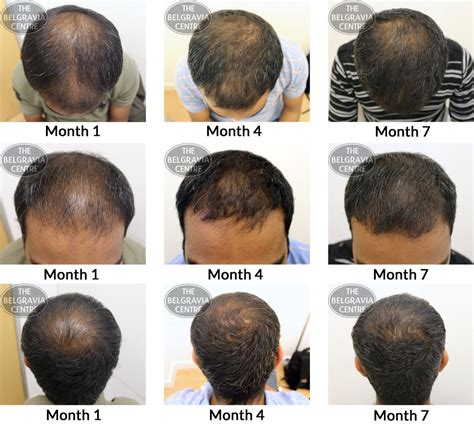 male hair loss pattern due to stress belgravia hair loss blog