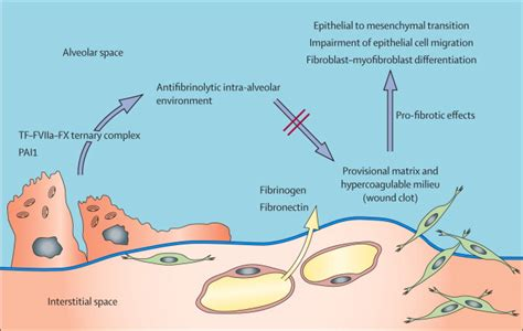 idiopathic pulmonary fibrosis the lancet idiopathic pulmonary fibrosis the lancet