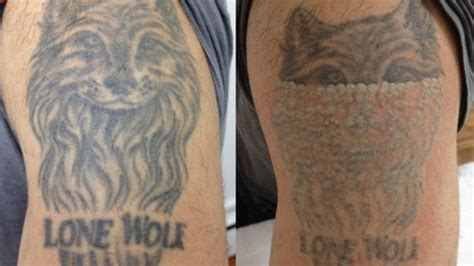 tattoo removal industry boom in removal businesses