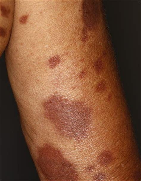leprosy skin lesions tuberculoid leprosy الجذام الدرني