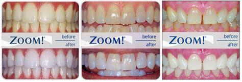 teeth whitening vic west dentistry