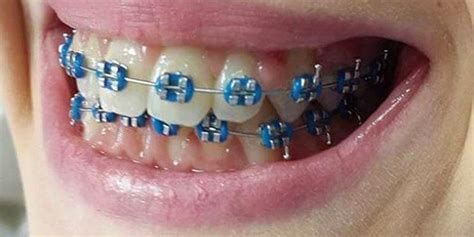 colored braces 10 colored blue braces for adults and braces explained