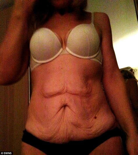 after losing the weight faye was left with two and a half pounds of