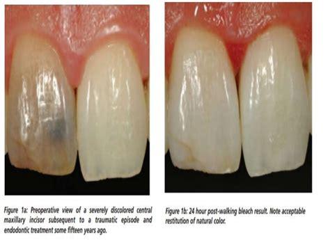 bleaching   vital teeth