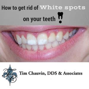how to get rid of white bumps on the side of your tongue how to get rid of white spots on your teeth dr chauvin