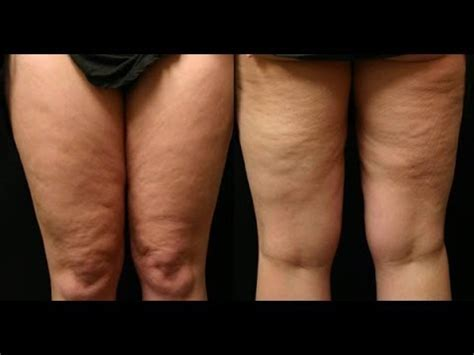 Miller Has Stretch Marks And Cellulite by Getting Rid Of Cellulite Fast Can Micro Needling Diminish