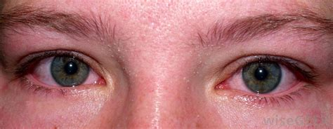 eye irritation what are the side effects of bromine with pictures