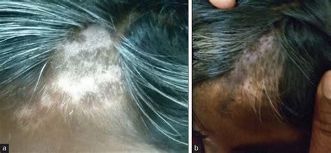 hair women mons pubis over 60 hair women mons pubis over 60 hair women pelvic women