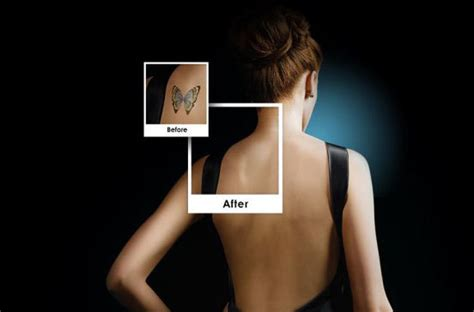 laser tattoo removal wichita ks tatto removal radiant touch laser center wichita falls