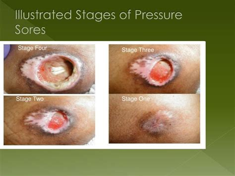 how to prevent bed sores on buttocks ppt decubitis ulcer pressure bed sore powerpoint