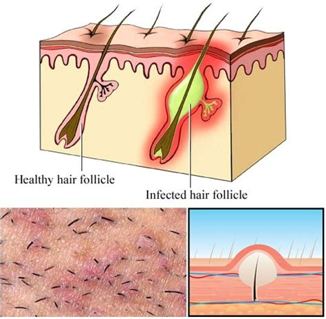 all comments on how to remove an ingrown hair youtube ingrown hair removal scrub alldaychic