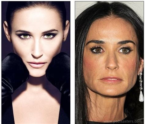 has fiona hughes had plastic surgery before after make up a collection of celebrities