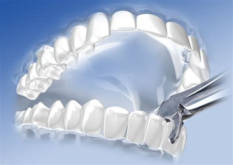 Wann Muss Einen Zahn Ziehen