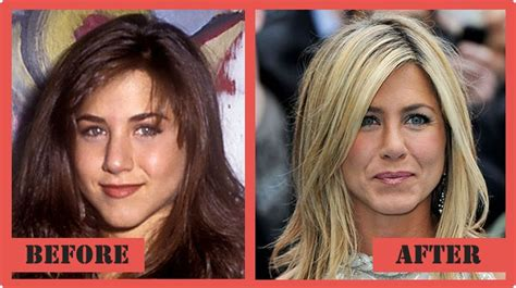 Did Aniston Get Implants by Aniston Before And After A Nose