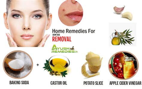 6 home remedies for skin tags tips from
