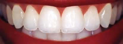 dental bonding at home dental bonding in tempe az hatch family dentistry