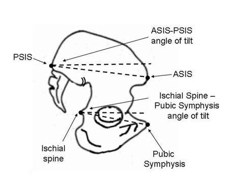 schematic diagram   pelvis illustrating  asis psis measure   scientific