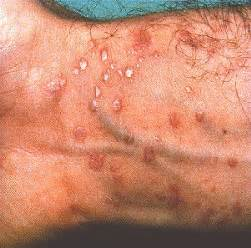 Light Skin Discoloration Around Mouth The Gallery For Gt Herpes Rash Groin