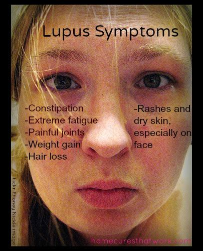 successfully beat lupus the way