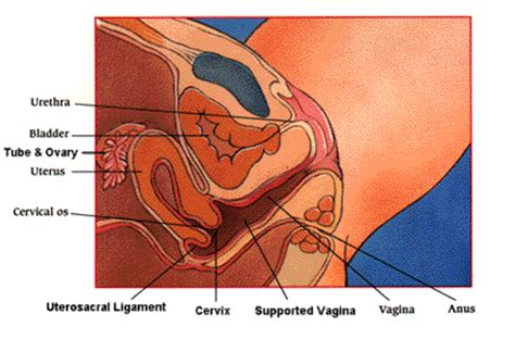 climaxing in a womens vigina ask dr pat hysterectomy and vaginal shortening women s