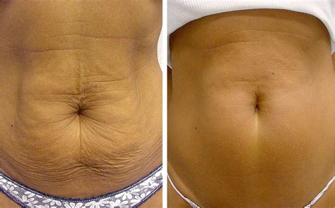 how to tighten loose skin on stomach after c section skin tightening cream for stomach skin tightening cream