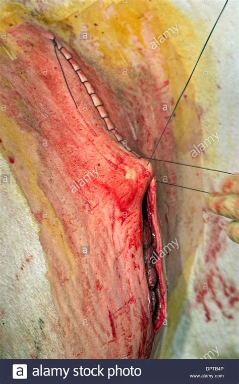 uterus stitches in c section stitching of the skin after extraction of calf by