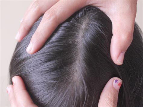 what color is lice tips on how to protect your kid from getting lice