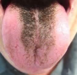 Black hairy tongue dr elizabeth dimovski dentists brampton