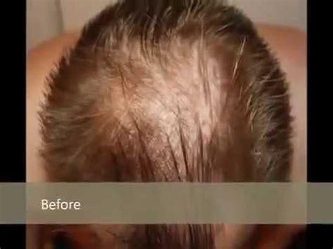 hair growth hair treatments grow  hair  hair