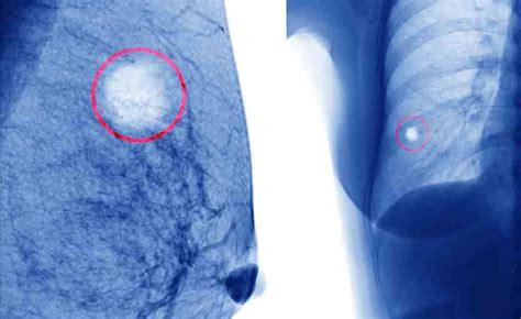 alimentazione tumore seno immagini tumore al seno alimentazione e tumore al seno il