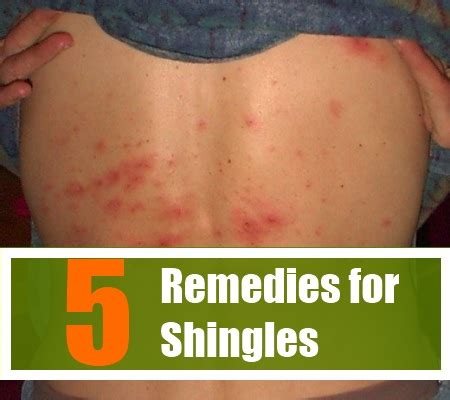 5 herbal remedies for shingles treatments and