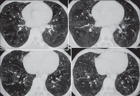 mosaic pattern obliterative bronchiolitis spectrum of high resolution computed tomography imaging in