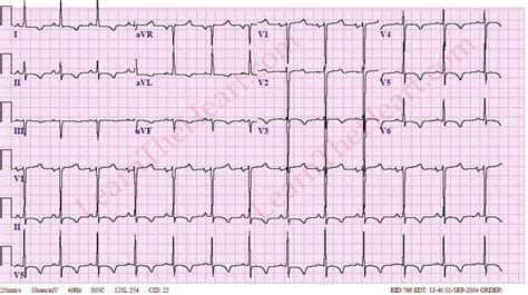 strain pattern ecg definition left ventricular hypertrophy with strain pattern exle