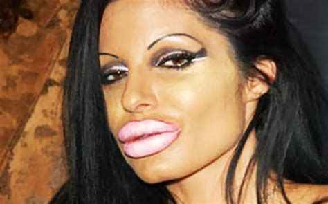 lip implants gone wrong related keywords suggestions for lip augmentation gone wrong