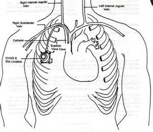 reflexiones de una casi enfermera en urgencias colocaci 211 n