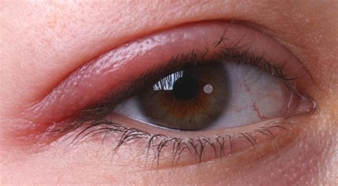eyelid swollen pimples on eyelids causes symptoms treatment and prevention