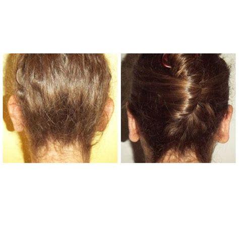 otoplastie chirurgie esth 233 tique des oreilles nogent sur