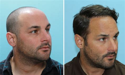 neograft doctors find the best neograft doctors fue hair transplant case study 1 year before after