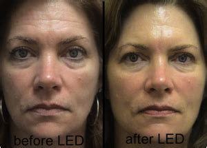 led light therapy before and after led light o2 wellness center