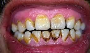 Pasta Gigi Untuk Perokok 5 tips memutihkan gigi untuk perokok aktif dokter gigi