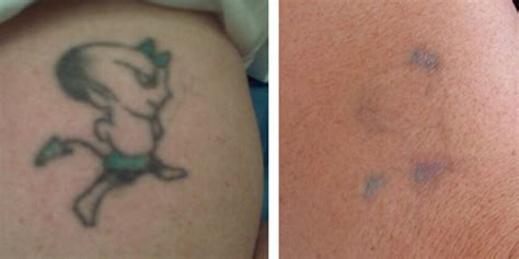 surgical tattoo removal before and after removal before after photos nyc