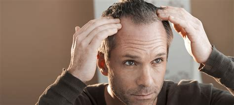 hair loss 50 years how to tackle men s thinning hair the idle man