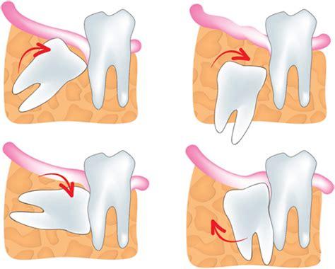 Odol Pemutih Gigi Dewasa Anak ada berapakah jumlah gigi orang dewasa alihamdan