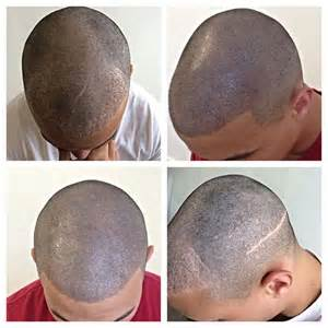 pics of scalp micropigmentation on with hair scalp micropigmentation scalp tattoo and hair tattoo at