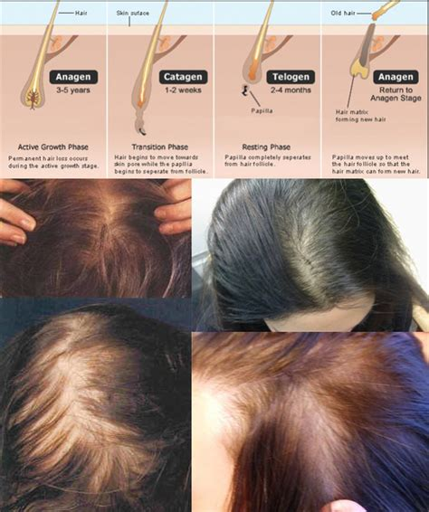 Does Hair Grow Back After Shedding by Telogen Effluvium Before And After Www Pixshark