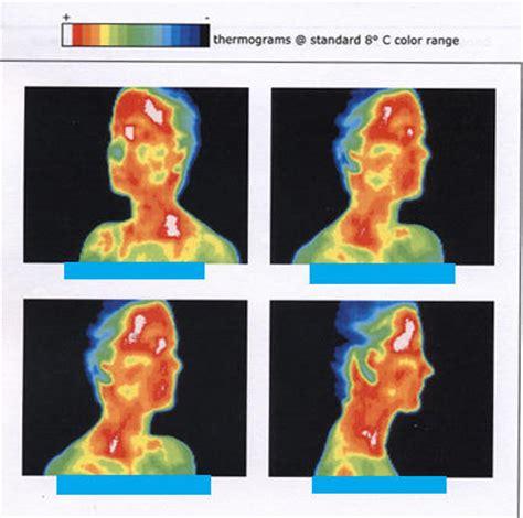 overheated symptoms brain overheating symptoms things you didn t