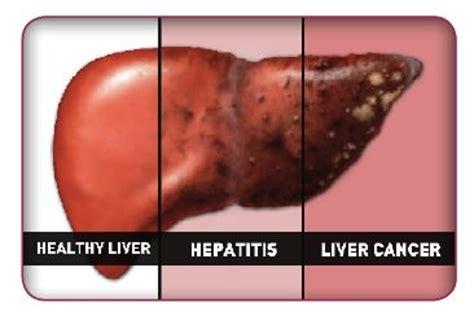 Detoxing Liver Heptiitis C by Liver Cancer Liver Cancer Liver Cancer