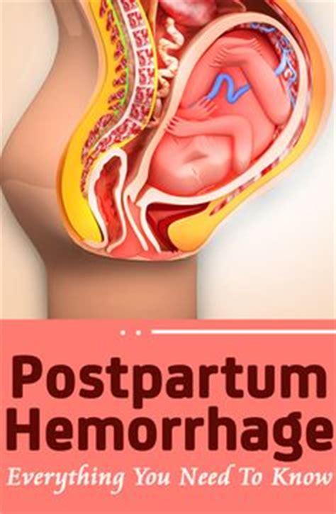 postpartum hemorrhage after c section 1000 images about nurse ob peds on pinterest ob