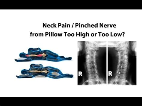 Can Pillow Cause Neck by Neck Pinched Nerve From Pillow High Or Low